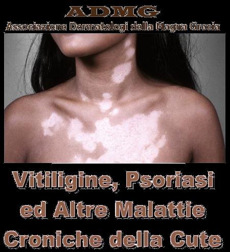 Soia di mescolanza a dermatite atopic